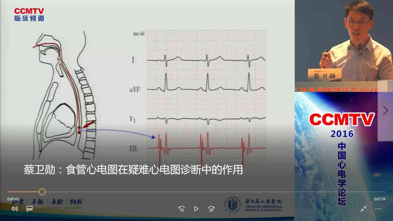 心血管疾病 诊断 心电图  蔡卫勋:食管心电图在疑难心电图诊断中的作用