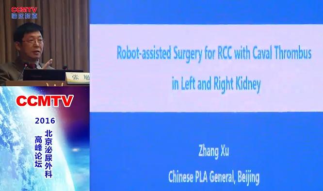 泌尿系疾病 外科讲坛 机器人 下腔静脉癌栓  张旭:机器人下腔静脉癌栓取出术:方法和技巧