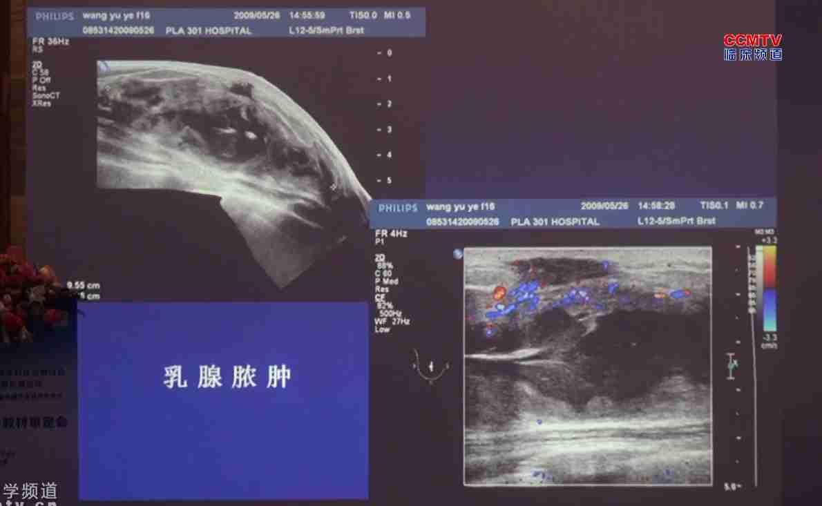 乳腺癌 诊断 王知力:乳腺疾病超声诊断