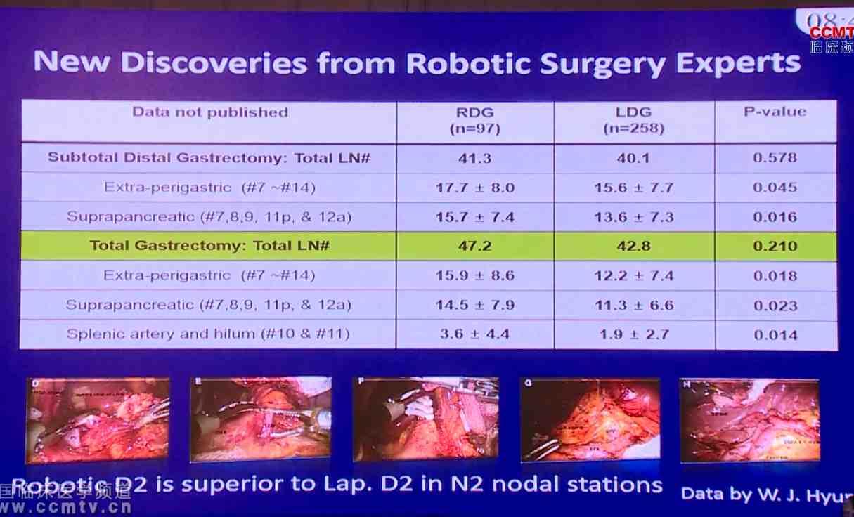 胃癌 诊疗策略 综合治疗 手术 Y Woo:胃癌微创外科的中西方差距