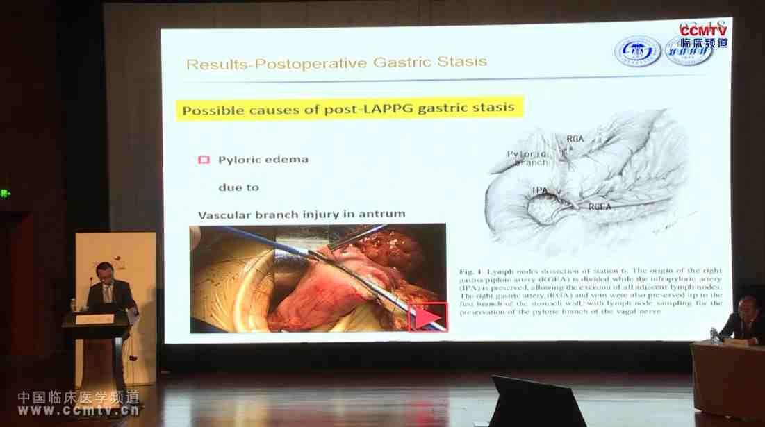 胃癌 外科讲坛 赵刚:早期胃癌腹腔镜辅助保留幽门的胃切除