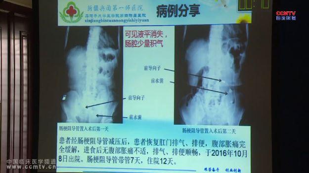 消化道疾病 外科讲坛 肠梗阻 李平:肠梗阻导管在非血运性肠梗阻中的临床应用