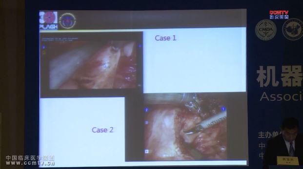 癌症 外科讲坛 达芬奇机器人 盆底 贾宝庆:达芬奇机器人盆底肿瘤切除术