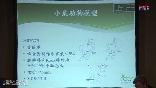消化道疾病 基础医学 减重手术 动物模型 花荣:减重手术动物模型探讨