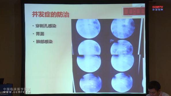 消化道疾病 外科讲坛 肥胖 刘志民:肥胖与代谢手术起步阶段经验