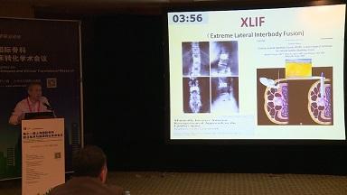 骨病 诊疗策略 退变性滑脱 范顺武:1例退变性滑脱的治疗