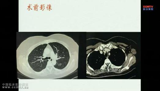 肺癌 综合治疗 首都医科大学宣武医院肺癌MDT团队-2