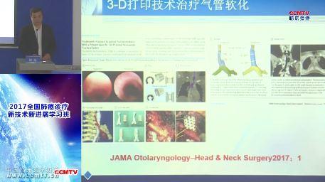 肺病 外科讲坛 赵珩:气管外科的现状与未来