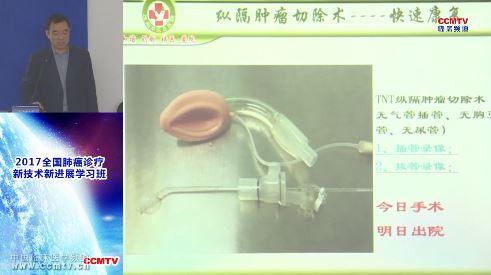 肺病 外科讲坛 王述民:机器人肺叶切除手术关注的热点技术分享