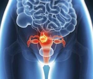 rhTPO治疗并预防宫颈癌放化疗导致的血小板减少