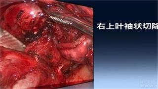 肺病 手术 微创 支气管 傅于捷:右上叶支气管重建术