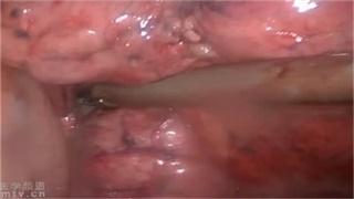 肺癌 手术 微创 胸腔镜 赵晓菁:三孔左上肺舌段切除术
