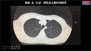 肺癌 手术 微创 单孔胸腔镜 傅于捷:单孔左肺上叶切除术