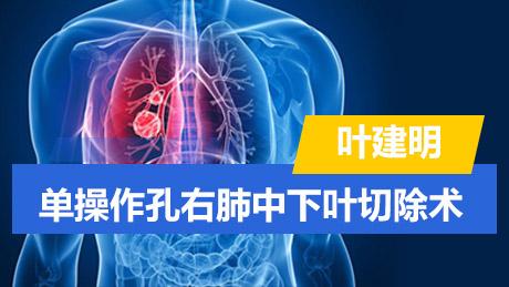 叶建明:单操作孔右肺中下叶切除术