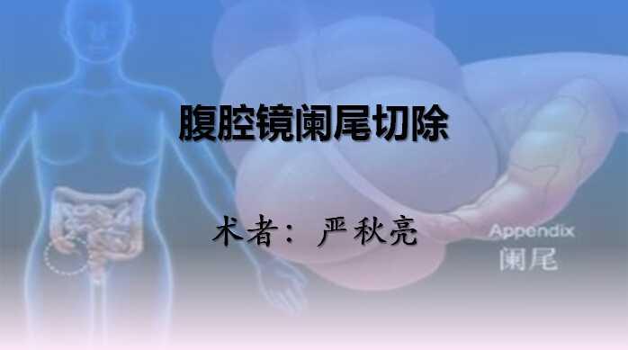 消化道疾病 手术 阑尾炎 腹腔镜 微创 阑尾切除术 严秋亮:腹腔镜阑尾切除