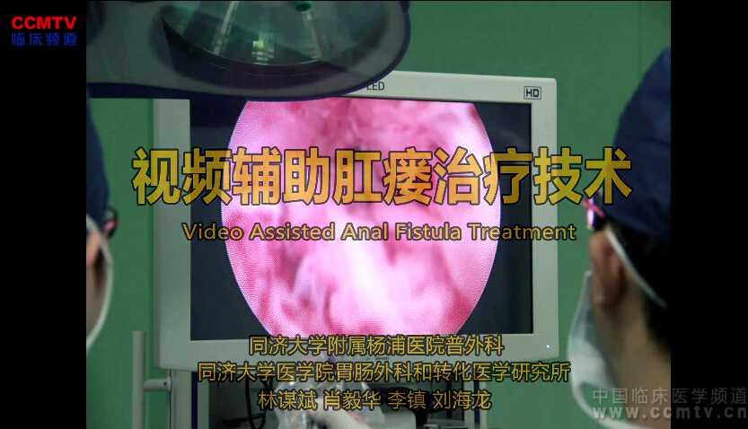 消化道疾病 手术 微创 内镜 肛瘘 李镇:VAAFT - 视频辅助肛瘘治疗手术