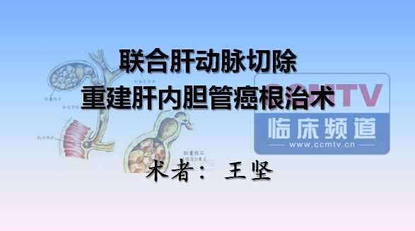 王坚:联合肝动脉切除重建肝内胆管癌根治术
