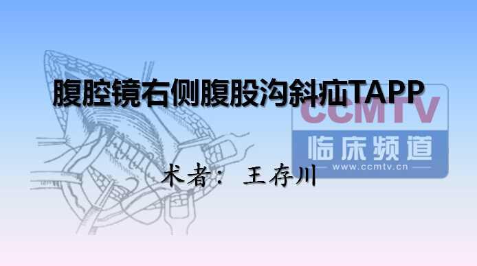 疝气 手术 微创 腹腔镜 腹股沟疝 TAPP 王存川:腹腔镜右侧腹股沟斜疝TAPP