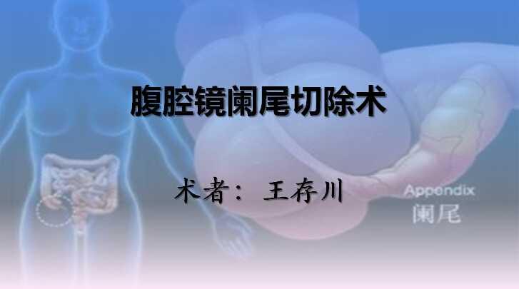 消化道疾病 手术 阑尾炎 腹腔镜 微创 王存川:腹腔镜阑尾切除术