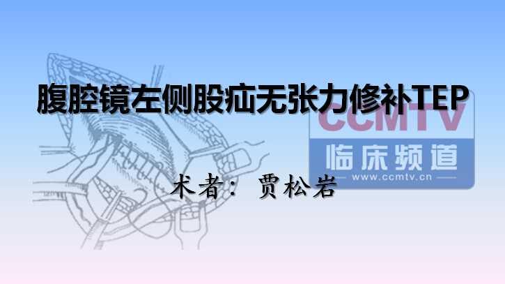 贾松岩:腹腔镜左侧股疝无张力修补TEP