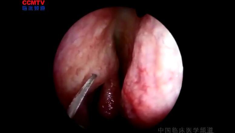 耳鼻喉疾病 手术 泪囊炎 鼻内镜下右鼻腔泪囊吻合术