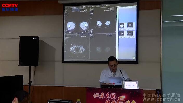 肾癌 病例讨论 MDT 华西MDT团队:典型肾脏肿瘤诊治病例讨论(2)