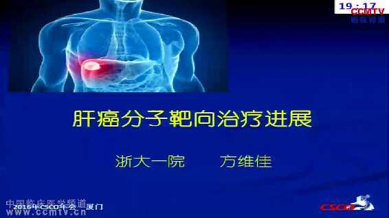 肝癌 靶向治疗 综合治疗 方维佳:肝癌分子靶向治疗进展