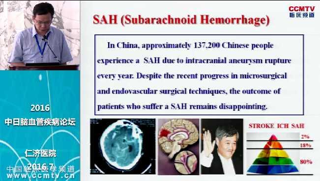 神经疾病 外科讲坛 诊疗策略 蛛网膜下腔出血 陈罡:蛛网膜下腔出血的研究及治疗进展