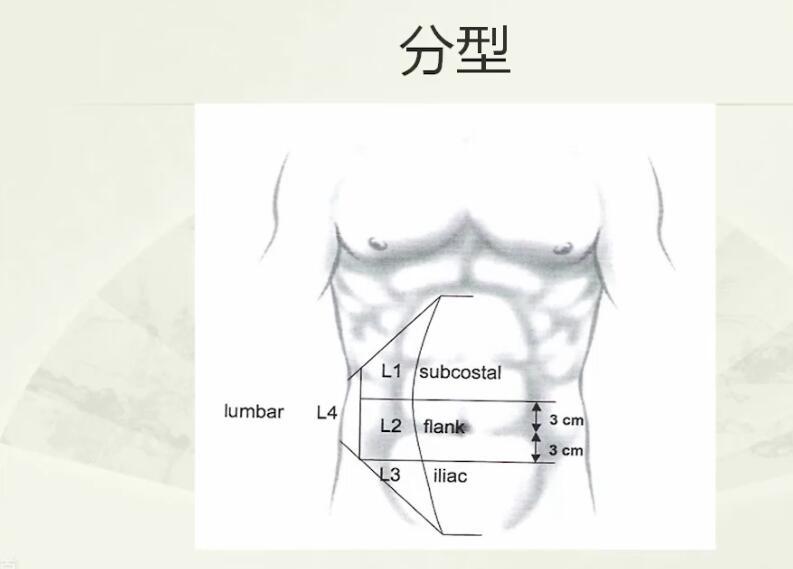 疝气 外科讲坛 切口疝 石玉龙:复杂切口的处理