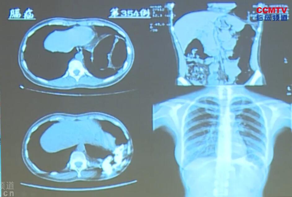 疝气 外科讲坛 微创 腹腔镜 手术 切口疝 李健文:腹腔镜技术在腹壁切口疝中的应用