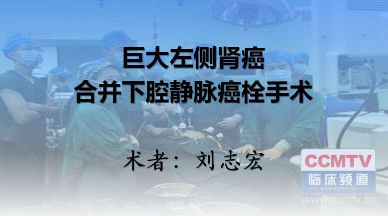 肾癌 手术 下腔静脉癌栓 刘志宏:巨大左侧肾癌合并下腔静脉癌栓手术