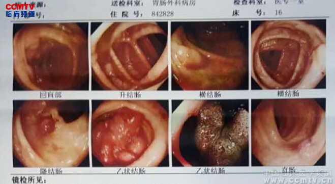 结直肠癌 手术 腹腔镜 微创 超声刀 刘明发:结肠管状腺癌腹腔镜结肠次全切除术