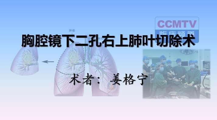 肺癌 手术 微创 胸腔镜 姜格宁:胸腔镜下二孔右上肺叶切除术(含讲解)