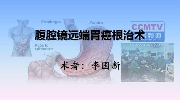胃癌 手术 微创 腹腔镜 李国新:腹腔镜远端胃癌根治术
