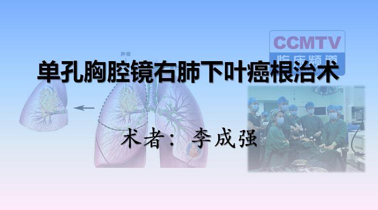李成强:单孔胸腔镜右肺下叶癌根治术