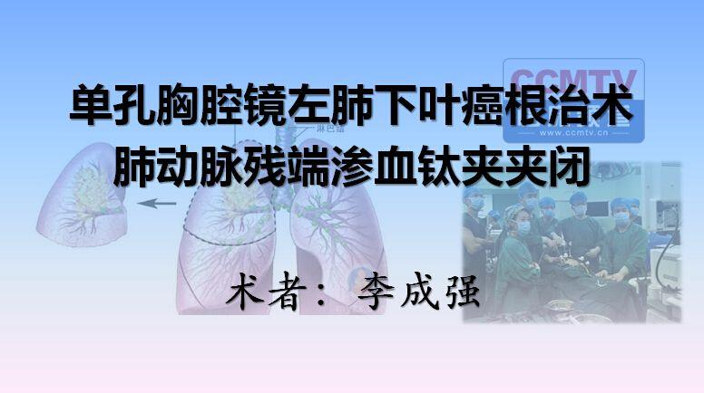 李成强:单孔胸腔镜左肺下叶癌根治术,肺动脉残端渗血钛夹夹闭