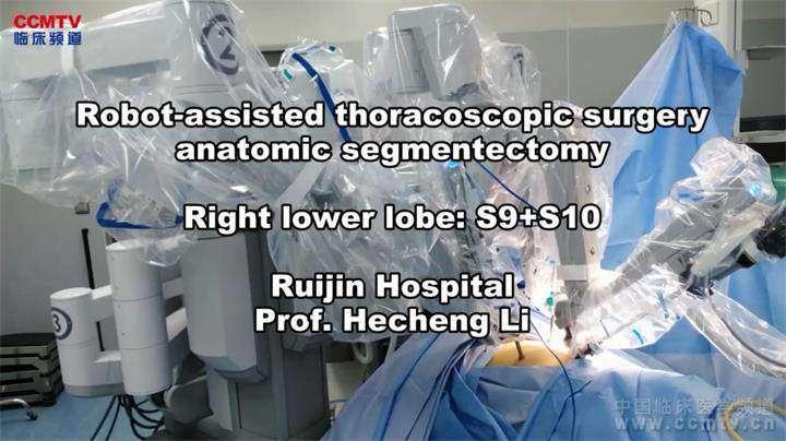 肺癌 手术 微创 机器人 肺段切除术 李鹤成:达芬奇右下S9+S10肺段切除术