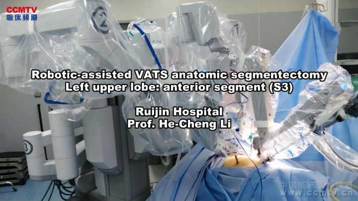 肺癌 手术 微创 机器人 肺段切除术 李鹤成:达芬奇左上S3肺段切除术