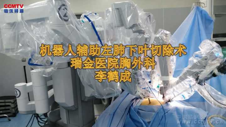 肺癌 手术 微创 机器人 肺叶切除术 李鹤成:达芬奇微创机器人肺癌手术,左下肺叶切除术