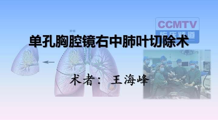肺癌 手术 微创 单孔胸腔镜 王海峰:单孔胸腔镜右中肺叶切除术(含讲解)