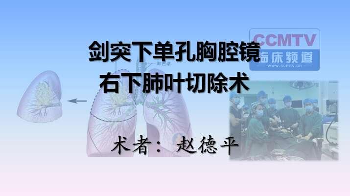 肺癌 手术 微创 单孔胸腔镜 赵德平:剑突下单孔胸腔镜右下肺叶切除术(含讲解)
