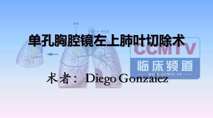 肺癌 手术 微创 单孔胸腔镜 肺叶切除术 D Gonzalez:肺癌微创手术治疗---单孔胸腔镜左上肺叶切除术(含讲解,英语)