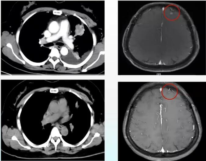 肺癌 病例讨论 心包积液 MDT 在线MDT病例讨论:左上肺占位伴心包恶性积液病例