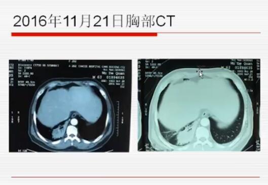 肺癌 病例讨论 MDT 在线MDT病例讨论:右肺占位性病变、纵膈多发淋巴结
