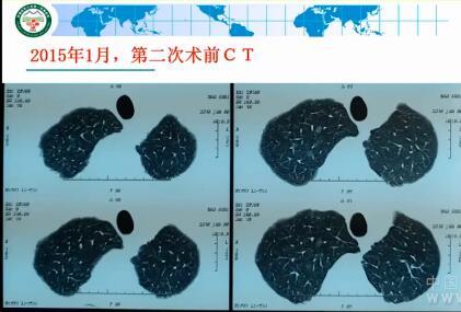 肺癌 病例讨论 MDT GGO 在线MDT病例讨论:确诊肺癌13年,体检发现右上肺多发结节2年余