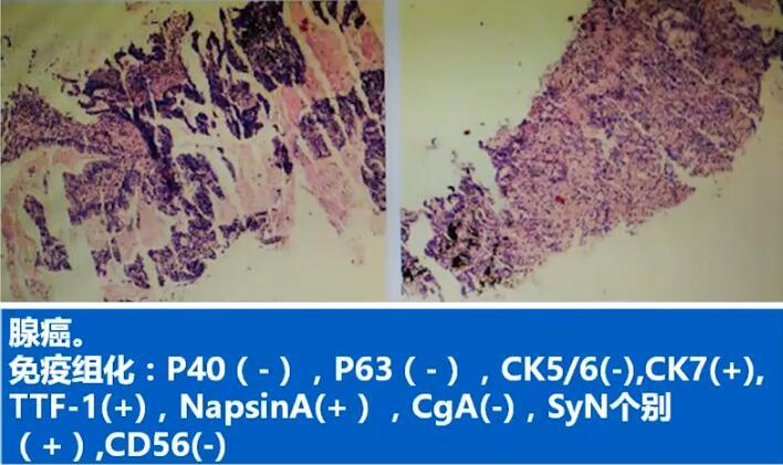 肺癌 病例讨论 MDT NSCLC 肺鳞癌 疑难病例讨论 在线MDT病例讨论:右肺占位,纤支镜下病理活检提示NSCLC鳞癌,可能有全身转移