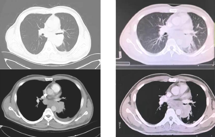 肺癌 病例讨论 MDT NSCLC 肺腺癌 辅助治疗 在线MDT病例讨论:右肺腺癌术后辅助化疗6月CEA明显升高