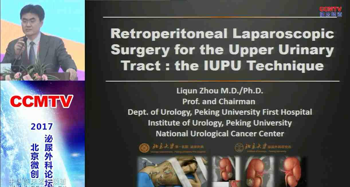 泌尿系疾病 外科论坛 诊疗技术 IUPU 周利群:腹腔镜北大医院泌尿所(IUPU)技术
