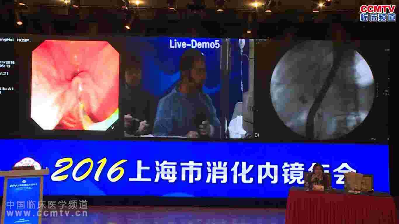 食管癌 手术 内镜 微创 ESD 消化道疾病 胃癌 2016上海市消化内镜年会手术直播演示 - 2(含讲解)