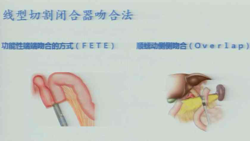 胃癌 诊疗策略 微创 万进:全胃切除腹腔镜食管空肠吻合——难点与对策